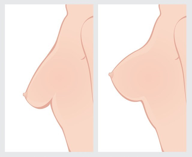Do this at least once a week for perfectly perky breasts