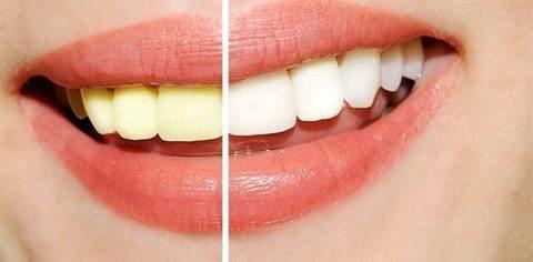 Zbardhje profesionale të dhëmbëve në MEDICA Istanbul Tetovë! -