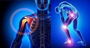 Promoted package for sport injuries during the November with 15% discount -