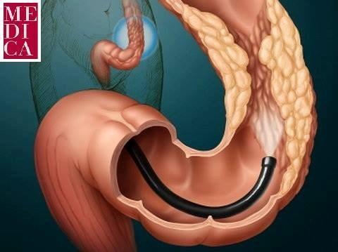 Ендоскопски преглед на дебелото црево (Колоноскопија) во МЕДИКА Истанбул Тетово! -