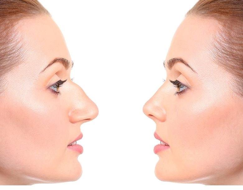 Ринопластика - корекција на нос во MEDICA Istanbul Тетово! -