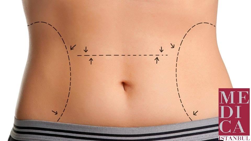 Естетска корекција на стомак - Абдoменопластика во МЕДИКА Истанбул Тетово! -