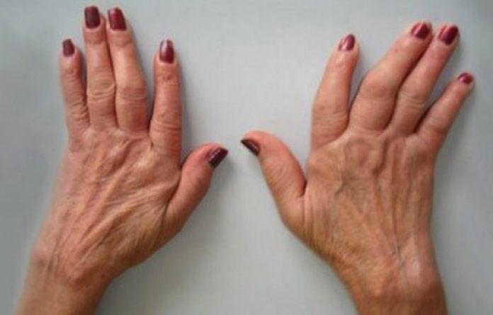 Ревматоиден артритис